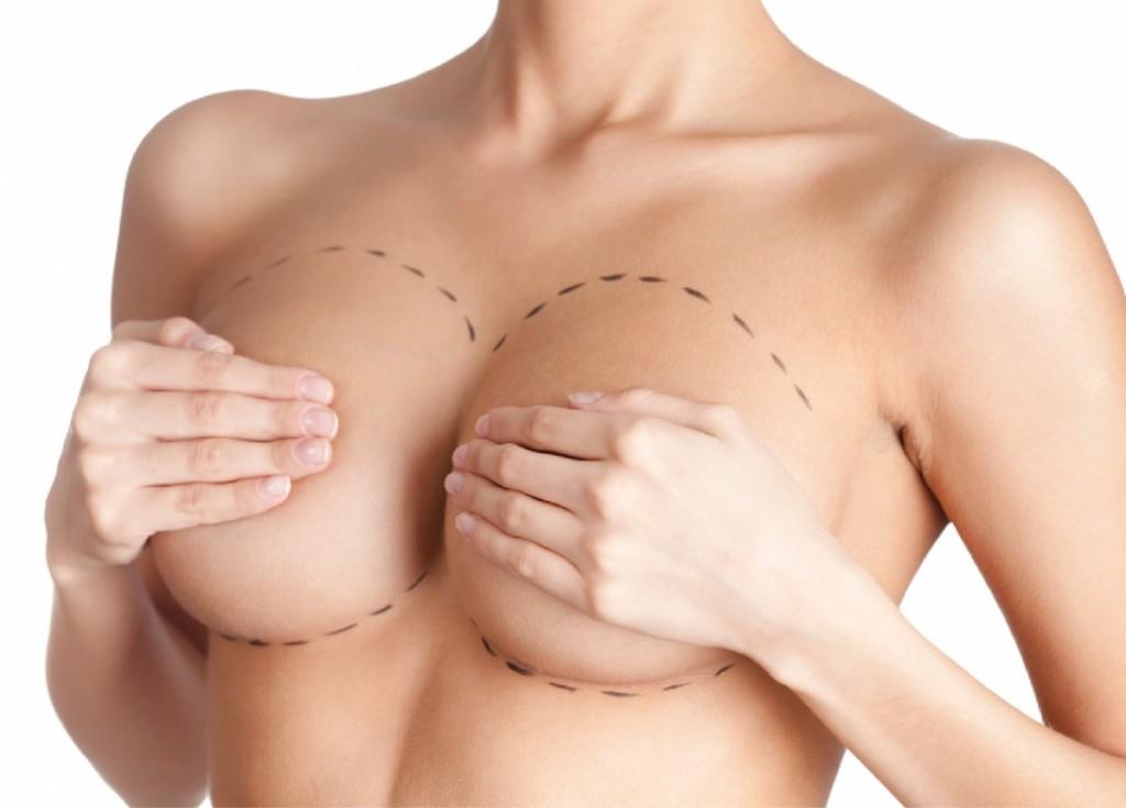 mamoplastia-redutora-plano-de-saude
